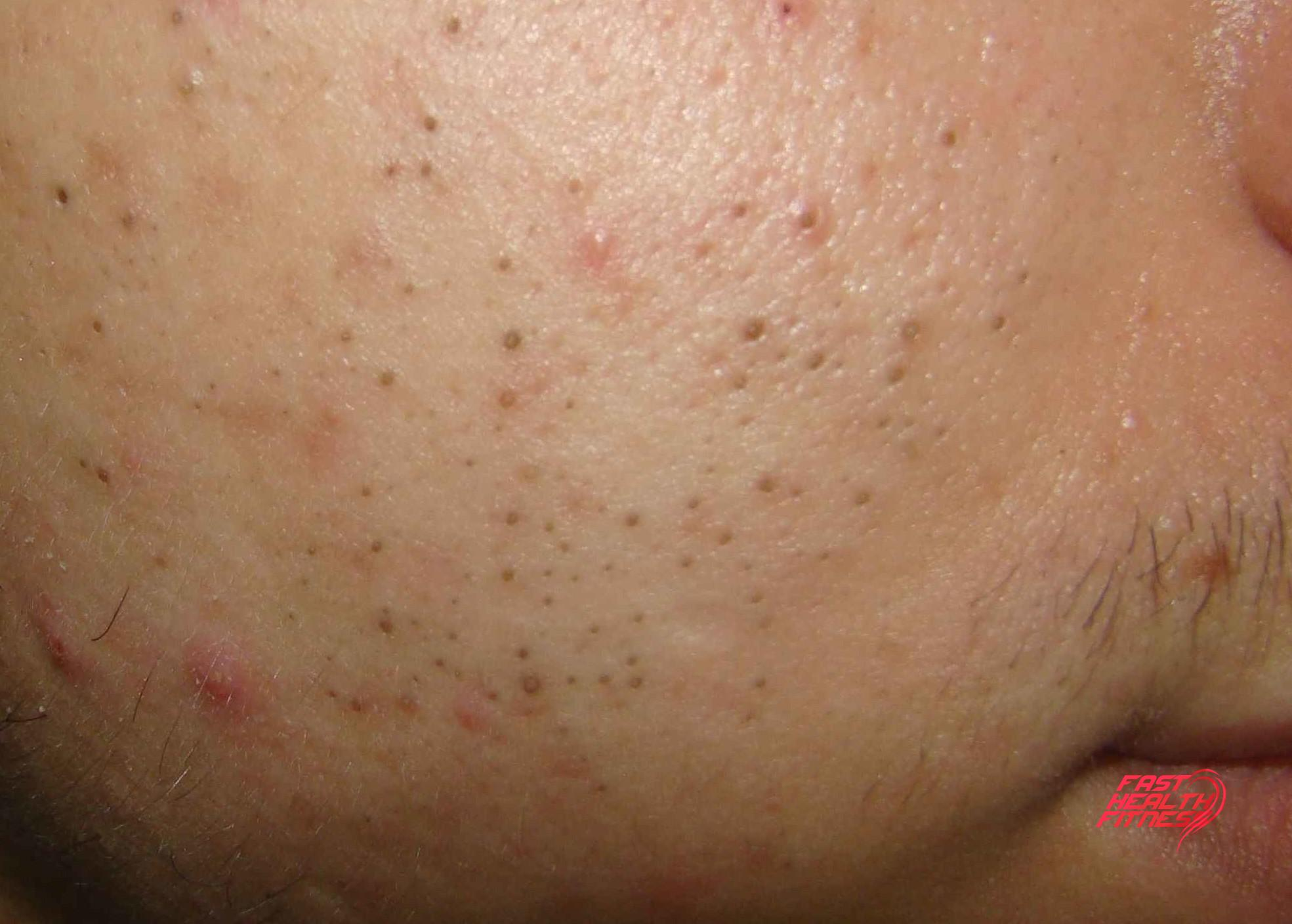 how to clear deep blackheads